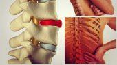 Cum se trateaza hernia de disc?